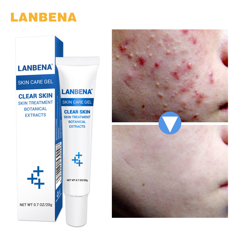 LANBENA Anti Acne Moisturizing Gel cream Oil Control Shrink Pores oily skin Acne Spots Face skin care repairing Shrink Pores