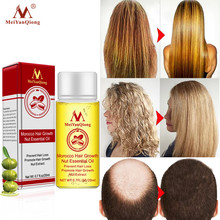 MeiYanQiong Fast Powerful Hair Growth Essence Hair Loss Products Essential Oil Treatment Preventing Hair Loss Hair Care Products hair loss care