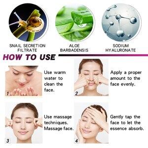 Image 5 - Sérum à lacide hyaluronique vitamine c Anti vieillissement, rétrécit les pores, hydrate, contrôle du visage, huile, produit de soins pour la peau