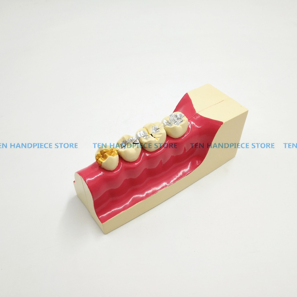 2018 new Dental teeth model Lower right posterior teeth tissue decomposition model Doctor - patient communication model magnetic lower molar with one root model molar teeth model dental model