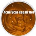 Repair Gel Pockmark Acne Scar Repair Pigmentation Corrector Shrink Pores After Sun Repair 1000g