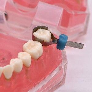 Image 2 - 32 szt. Dodatkowe metalowe opaski dentystyczne uniwersalne Supermat Automatrix wykonane w rosyjskiej matrycy dentystycznej do wymiany zębów