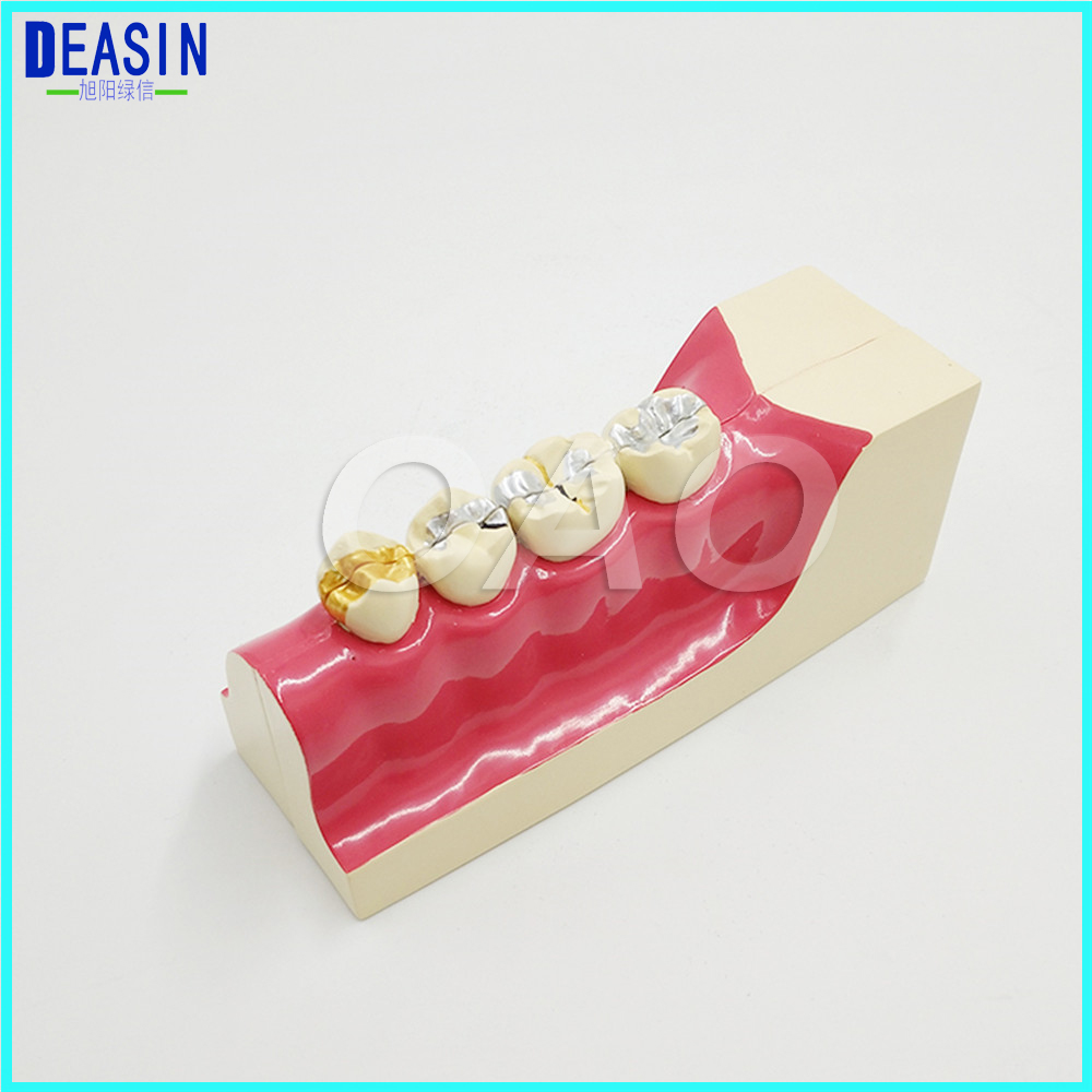 Doctor - patient communication model with magnetic Dental teeth model Lower right posterior teeth tissue decomposition model transparent dental orthodontic mallocclusion model with brackets archwire buccal tube tooth extraction for patient communication