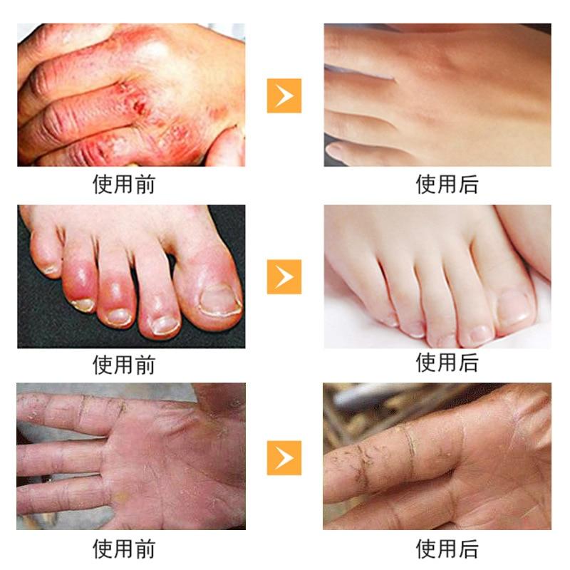 Horse Oil Hand Foot Crack Cream Heel Chapped Peeling Foot Hand ...