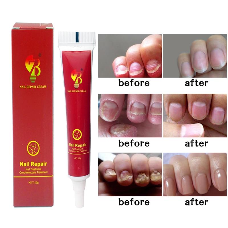 Nail Treatment Ointment Treatment Onychomycosis Paronychia Anti  Nail Infection Nail Treatment Plaster