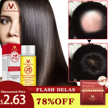 Fast Powerful Hair Growth Essence Hair Loss Products Essential Oil Liquid Treatment Preventing Hair Loss Hair Care Products 20ml