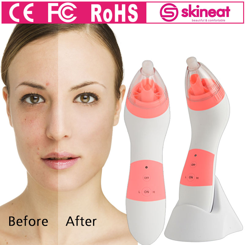 2017 Skineat Diamond Facial Massager Dermabrasion Equipment Microdermabrasion Blackhead Removal Scar Device For Women