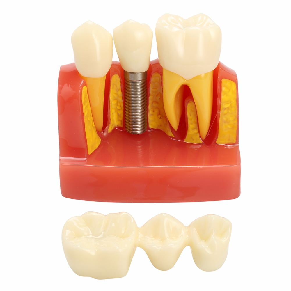 Dental Implant Analysis Crown Bridge Demonstration Teeth To oth Model 2017 new arrival macro implant model crown bridge demostratation teeth tooh typodont dentoform