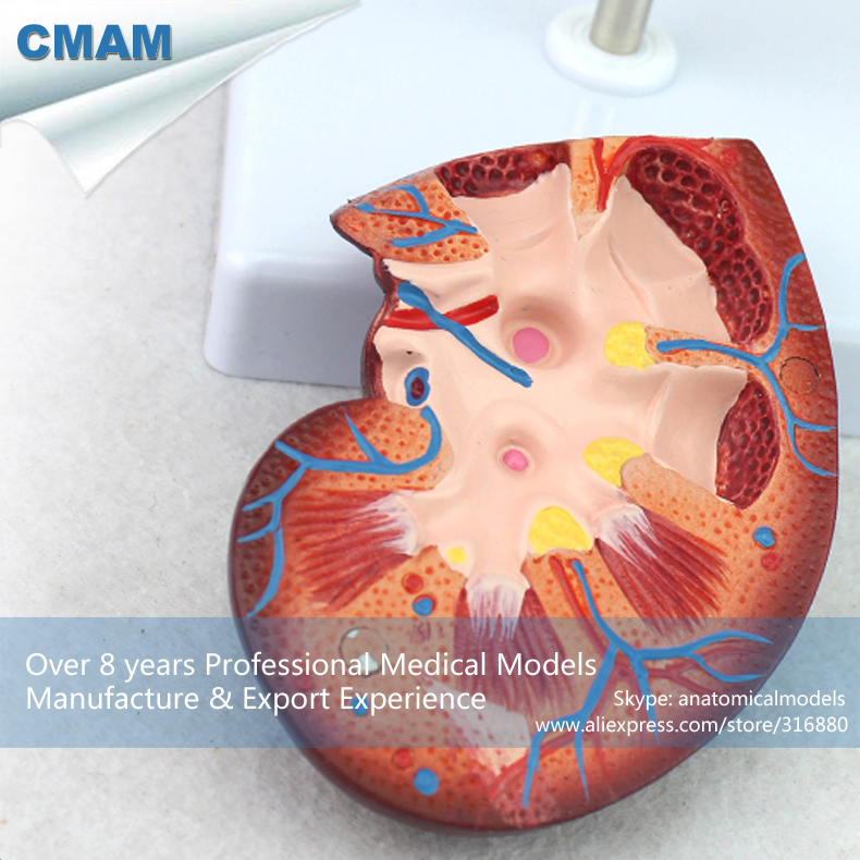 цены на CMAM-KIDNEY05 Normal Kidney Anatomy Model,2 Part, 1.5 time Enlarge Life Size, Anatomy Models > Urinary Models в интернет-магазинах