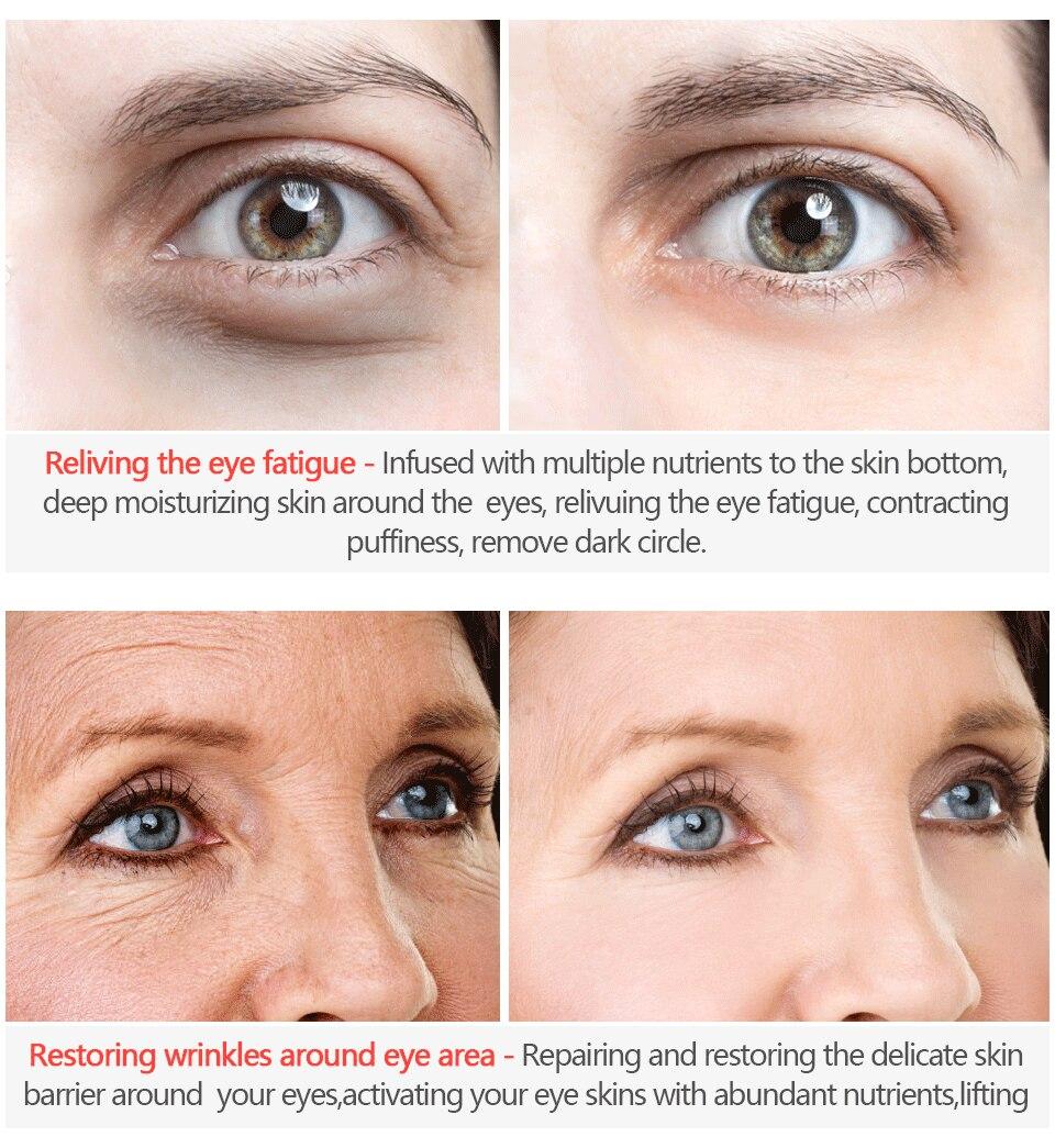set repair eye discount 14