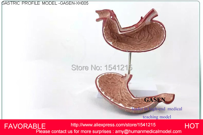 PATHOLOGICAL GASTRIC ANATOMICAL MODEL, ANATOMICAL MODEL OF ORGAN TISSUE,,HUMAN ORGANS MODEL GASTRIC PROFILE MODEL-GASEN-XH005 human skin tissue structure enlarged model of hair follicle sweat gland enlargement human anatomical skin model gasen rzpf002