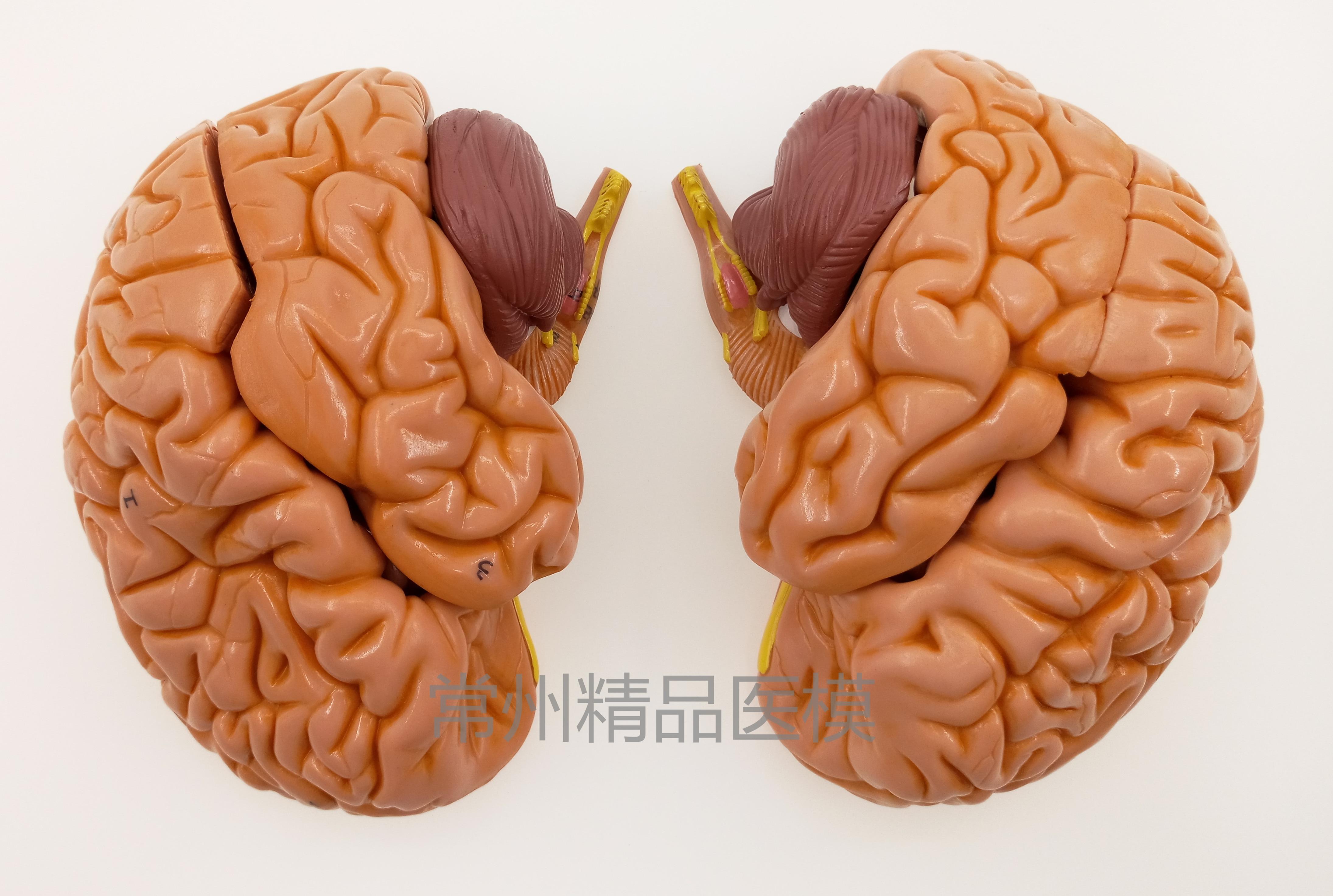 1:1 Life Size Brain Anatomical Model,Human Cerebral Artery Model ...