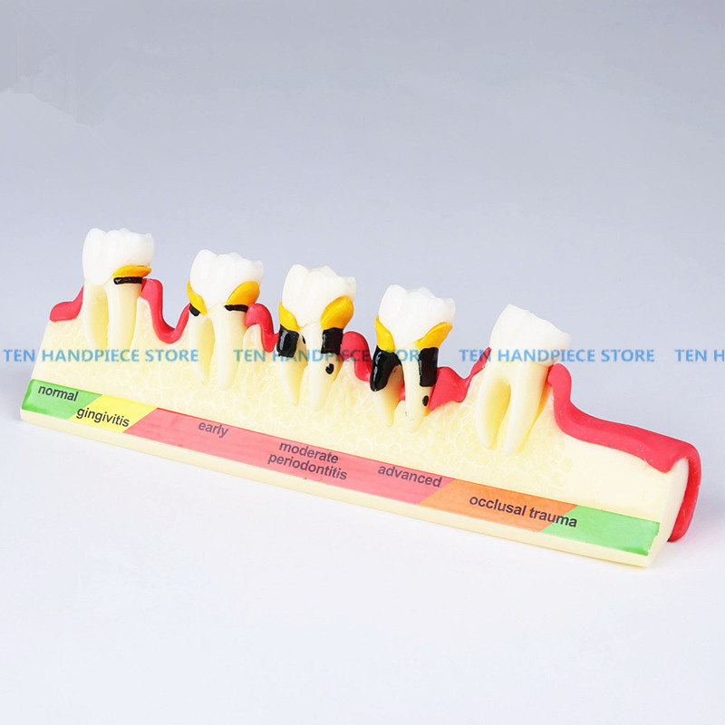 2018 new Classification of periodontal diseases teeth model Dental patient communication model process of periodontal disease soarday children primary teeth alternating transparent model dental root clearly displayed dentist patient communication