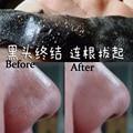 3pcs Blackhead whitehead Remover Nose Mask Pore Strip Suction Black Mask Peeling oily nose skin strawberry nose Acne nose care