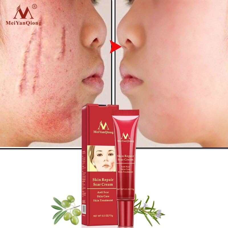 MeiYanQiong 15ML Acne Scar Stretch Mark Repair Cream Treatment Blackhead Whitening Cream Skin Repair Face Cream