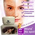 Meiyanqiong moistourizing potente cuidado de la piel crema para blanquear la cara quitar pecas cara abrillantador crema 50g