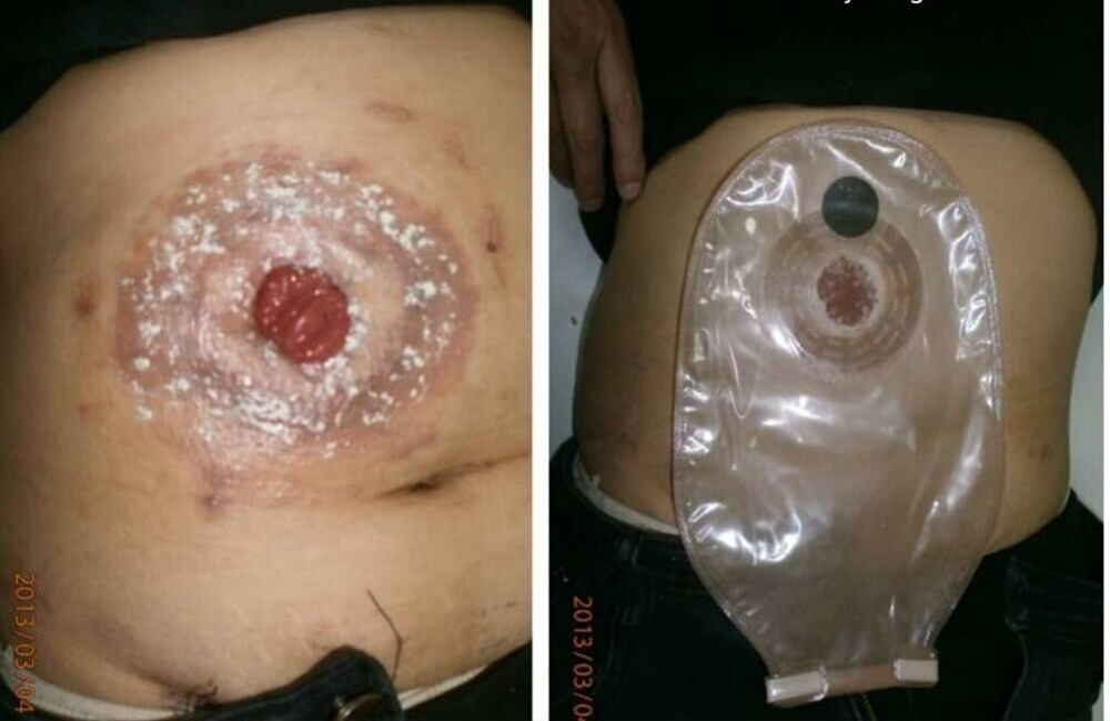 leaking from anus after colostomy surgery
