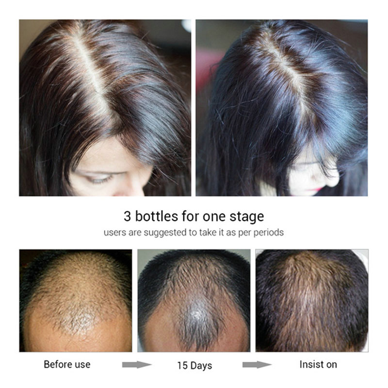 Fast-Natura-Hair-Growth-Spray-Essence-Liquid-Dense-Regrowth-Essence-Treatment-Preventing-Baldness-Consolidating-Anti-Hair (3)