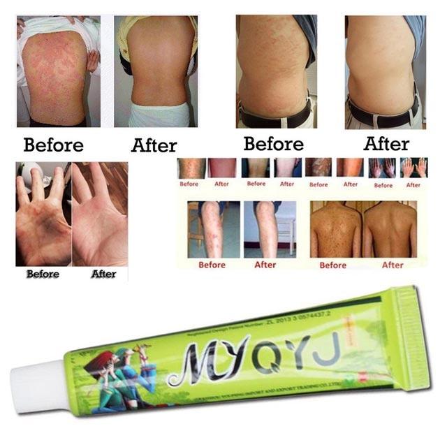 Eczema Psoriasis Treatment Beli Murah Eczema Psoriasis: 15g/box Hot Sell Skin Psoriasis Cream Dermatitis