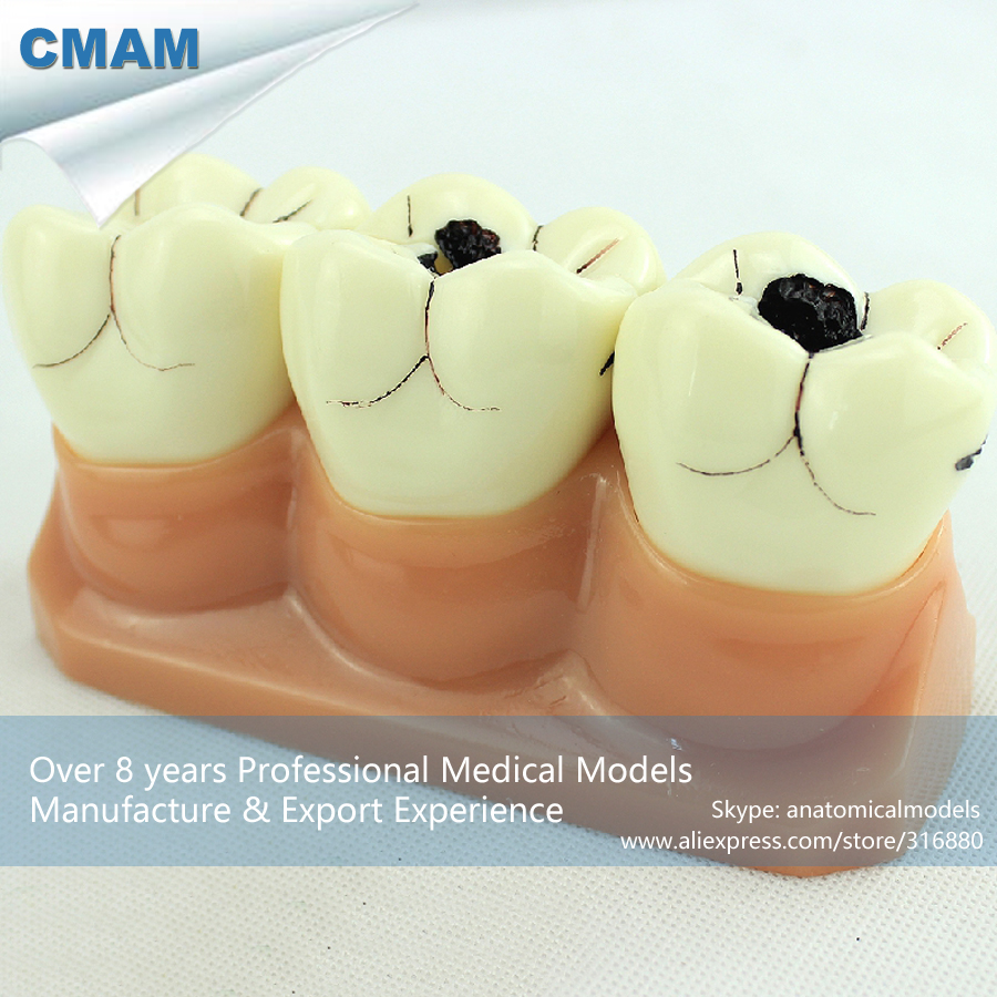 CMAM-TOOTH02 Human Tooth Anatomy Dental Caries Model in 7 Parts,  Medical Science Educational Teaching Anatomical Models cmam viscera01 human anatomy stomach associated of the upper abdomen model in 6 parts