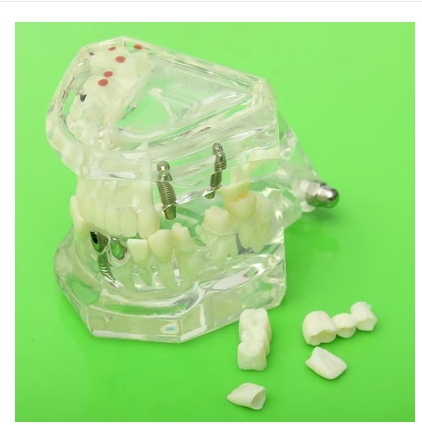 Dental Implant Disease Teeth Model with Restoration & Bridge Tooth Ideal for treatment planning discussions with patients attachments retaining implant overdentures