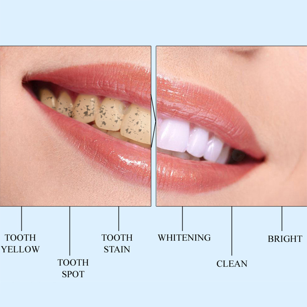 1pcs Teeth Whitening Pen Tooth Brush Essence Oral Hygiene Cleaning Serum Remove Plaque Stains Dental Tools Toothpaste Toothbrush