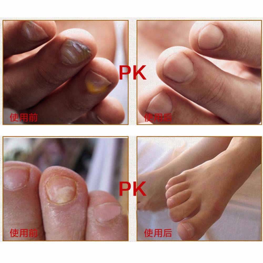 Original Fungal Nail Treatment Essence Nail and Foot Whitening Toe Nail Fungus 4