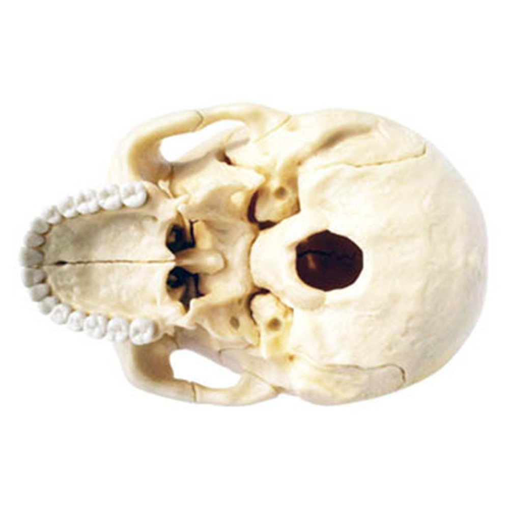 LeadingStar 3D Puzzle Didactic Explored Skull 1:2 Anatomy Model ...