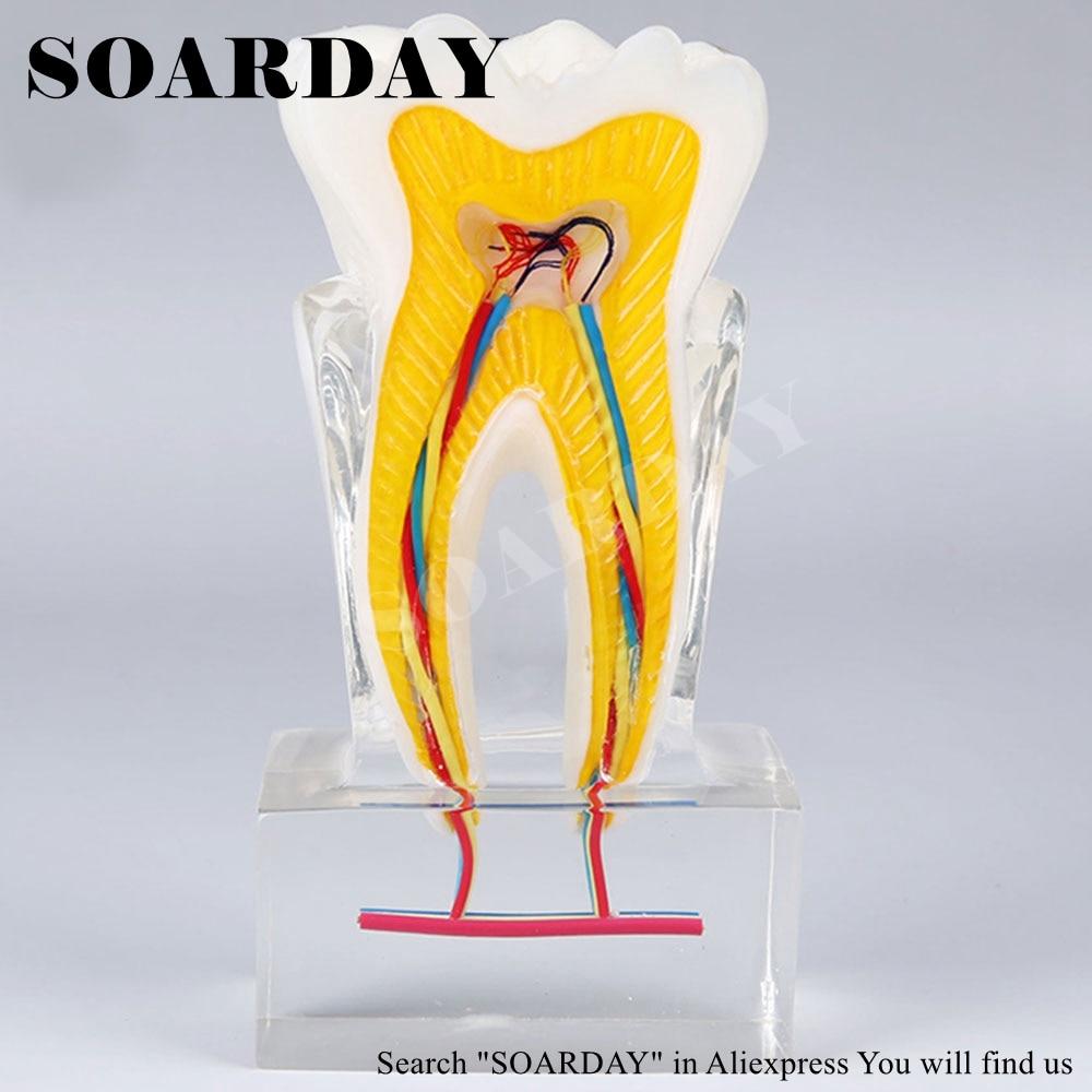 SOARDAY seis veces el nervio del diente modelo de enseñanza de ...
