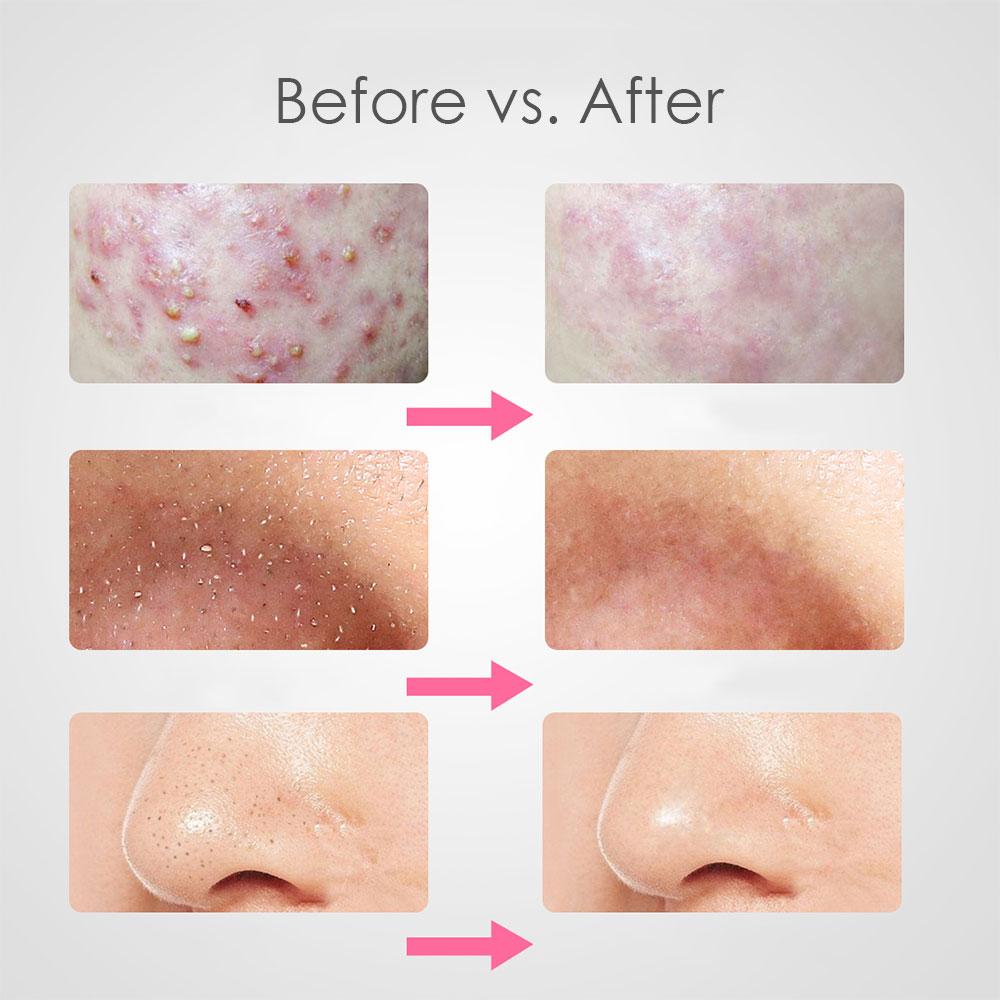 7pcs Blackhead Remover Tool Black Spots Needles Pore Cleanser Vacum Comedone Pimple Blemish Extractor Beauty Acne Remover Tools 5