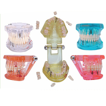 1PC Dental Implant Disease Teeth Model with Restoration Bridge Tooth Dentist for Medical Science Teaching 5 Colors