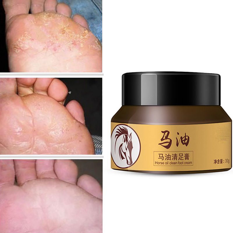 Horse Oil Feet Cream Foot Care For Athlete\'s Foot Feet Itch Blisters Anti-chapping Peeling Antibacterial Scar Bad Feet Ointment