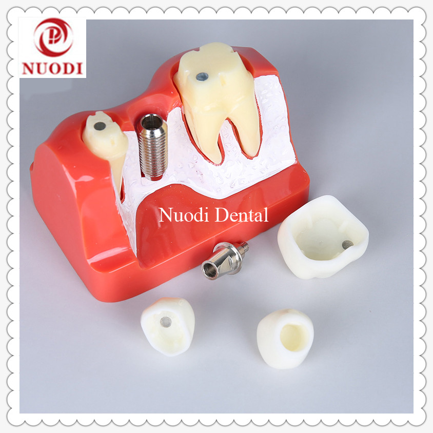 Dental clinic Dental Implant Bridge Model Removeable bridge crown /4x Implant fixture teeth Model/Implant Education teeth model soarday 1 piece 2 times dental pathological model implant bridge crown treatment oral teaching model