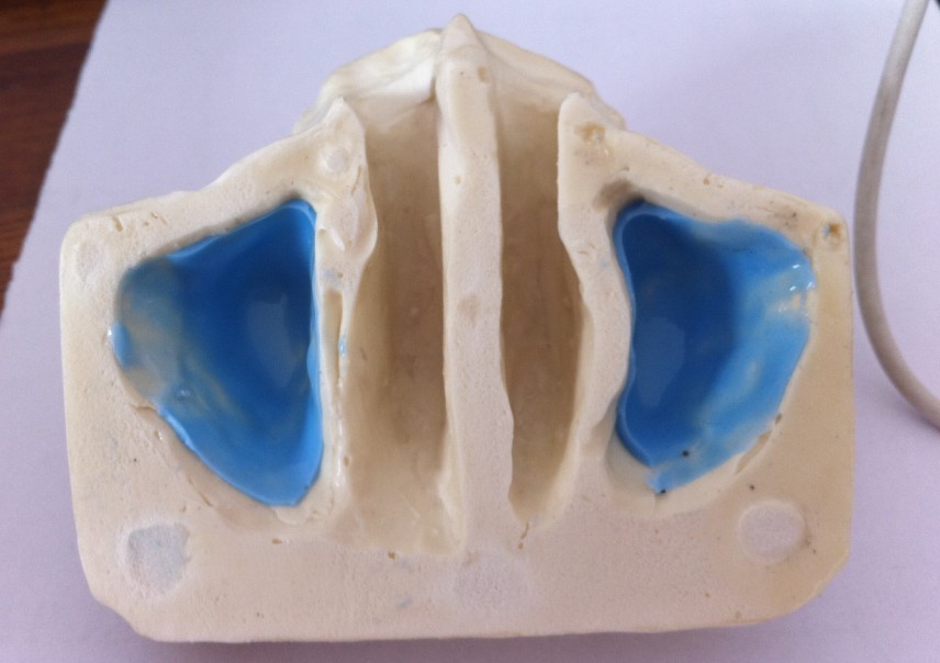 Free Shipping Sinus practice model for education dental tooth teeth dentist anatomical anatomy model odontologia free shipping skull model 10 1 extraoral model dental tooth teeth dentist anatomical anatomy model odontologia