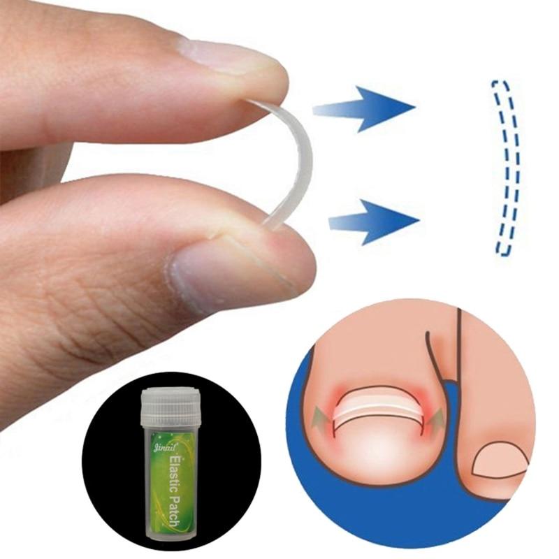 1 Набор инструментов для коррекции вросших пальцев ног, педикюра, выпрямления пластырей, ухода за ногами