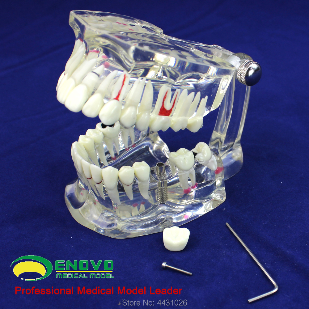 ENOVO Dental model of dental dental disease пуховик ea7 ea7 ea002emboar1