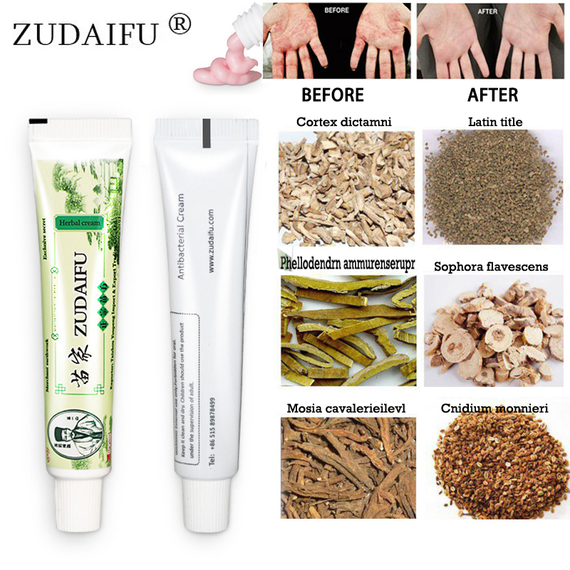 100% Original zudaifu Skin Psoriasis Cream Dermatitis Eczematoid Eczema Ointment Treatment Psoriasis Cream Skin Care Cream(China)