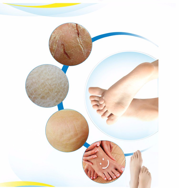 1Pcs Cracked Heel Tastic Foot Massage Cream Cracked Skin Foot Repair Oil Relieve Chapped Feet Beauty Cream Foot Care beauty 1