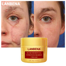 LANBENA Acne Scar Stretch Marks Remover Cream Skin Natural Herbal Repair Face Cream Acne Spots Acne Treatment Whitening Cream !