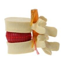Anatomical Spine Lumbar Disc Herniation Anatomy Medical Teaching Tool 1 1 pvc high quality cardiac anatomy model medical teaching tool art tool instructional tool clinic figurines