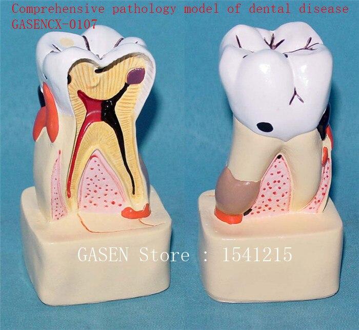 Oral care model Tooth model Teaching model Medical teaching aidsComprehensive pathology model of dental disease - GASENCX-0107