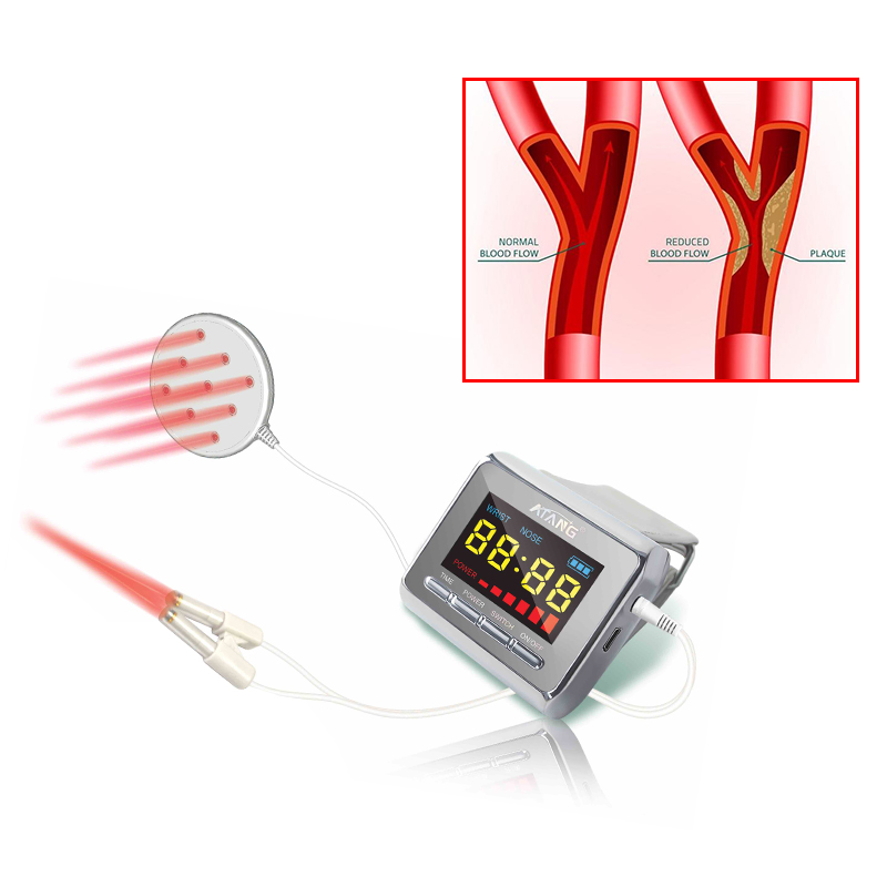 Haute pression artérielle Laser montre thérapie cardiopathie Patients avc malades diabétiques thérapeutique Acupuncture montre Laser