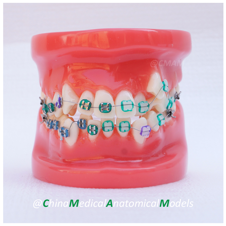 13032 DH204-2 Dentist Training Oral Dental Ortho Metal and Ceramic Model, China Medical Anatomical Model 3 1 human anatomical kidney structure dissection organ medical teach model school hospital hi q