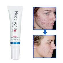 10 stks/partij Nuobisong Specifieke Acne Behandeling Gel, gezichtsverzorging effectief verwijderen puistjes zonder irritante