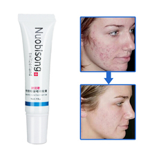 10PCS/lot Nuobisong Specific Acne Treatment Gel, Face care effectively remove  pimples without irritating