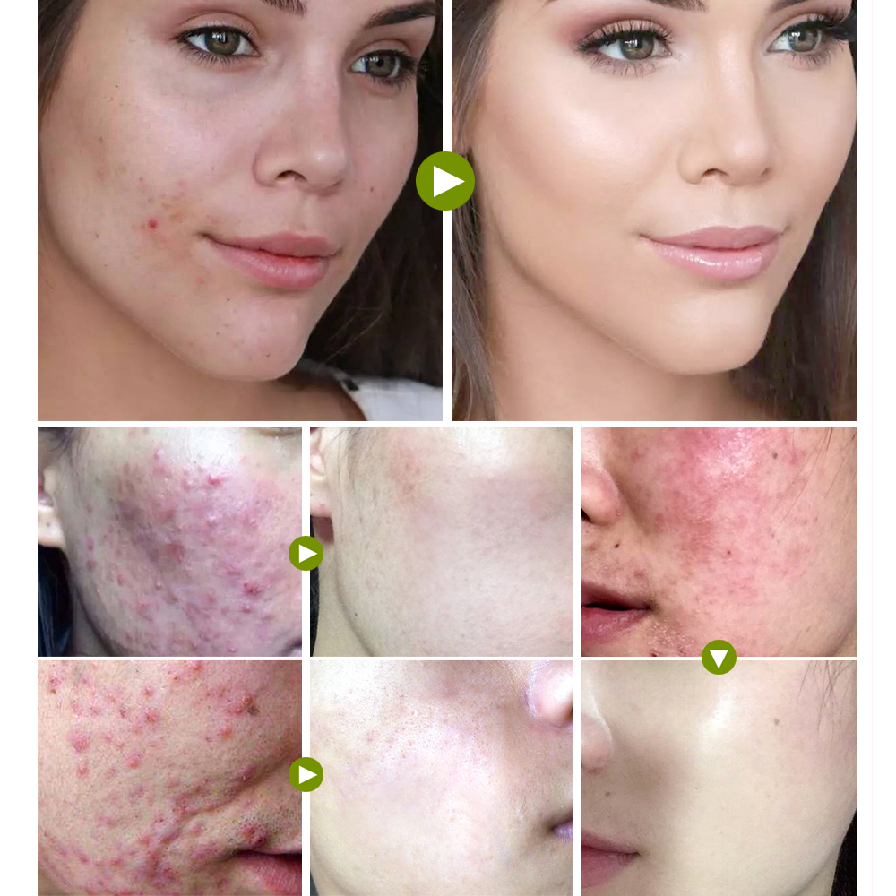 VIBRANT GLAMOUR Tea Tree Anti-acne Face Cream Acne Scar Shrink Pores Facial Eliminates Acnes Cream Oil control Repair Spot 3