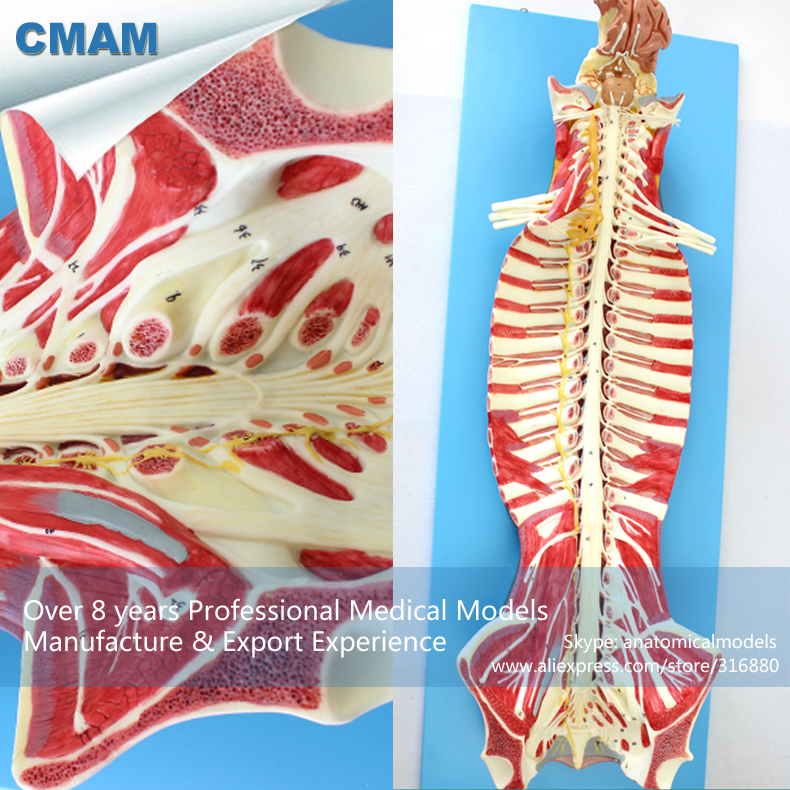 CMAM-MUSCLE17 Human Spinal Cord in the Spinal Canal Anatomy Model , Medical Science Educational Teaching Anatomical Models gabriela pohoata romanian educational models in philosophy