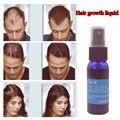 Nueva marca de 2016 Producto del crecimiento del pelo de yuda Tratamiento de pérdida de cabello 30 ml Líquido Del Crecimiento Del Pelo Rápido/botella anti gris pelo