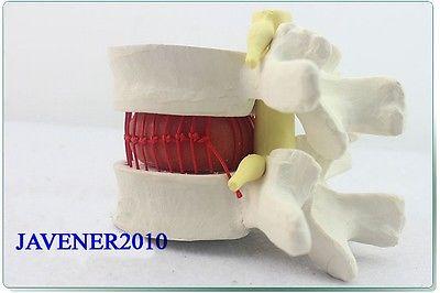 Human Anatomical Lumbar Vertebra Slipped Disc Medical Demonstration Model