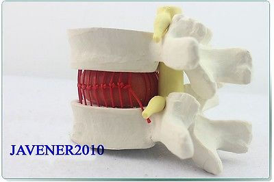 Human Anatomical Lumbar Vertebra Slipped Disc Medical Demonstration Model цена